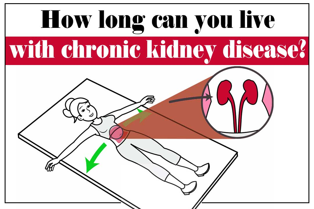 How Long A Chronic Kidney Disease Patient Live Ayurved Treatment